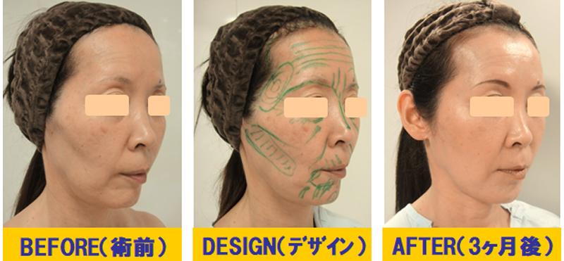 痩せこけ顔への若返り術03-2