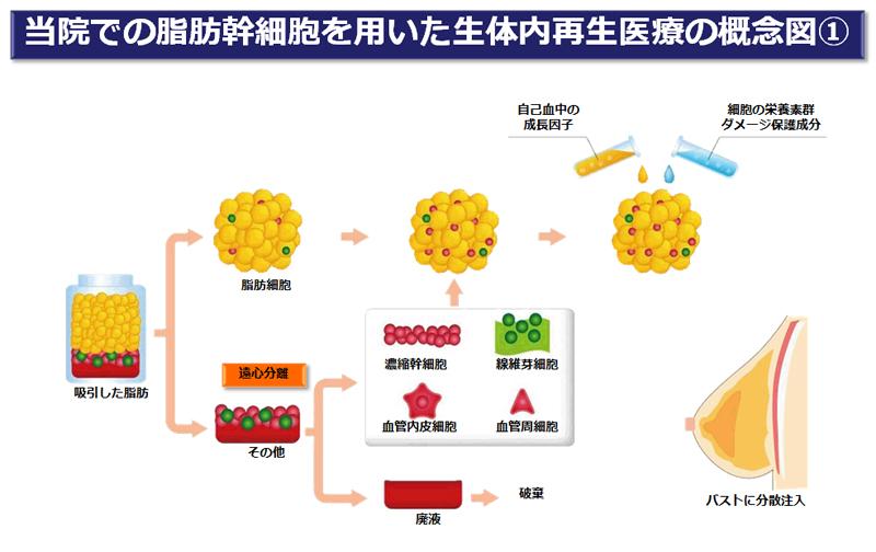 脂肪幹細胞を用いた生体内再生医療の概念図1
