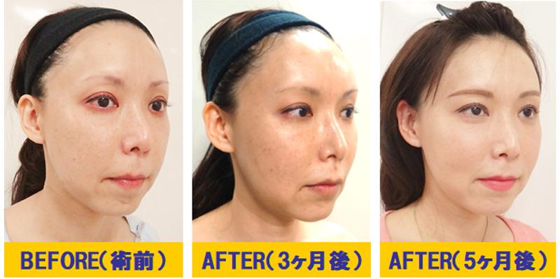 肌改善若返り術02-2