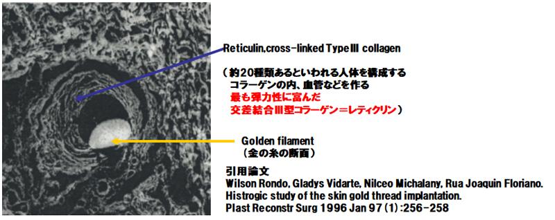 金の糸挿入術後作用図