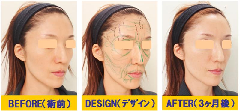痩せこけ顔への若返り術02-2