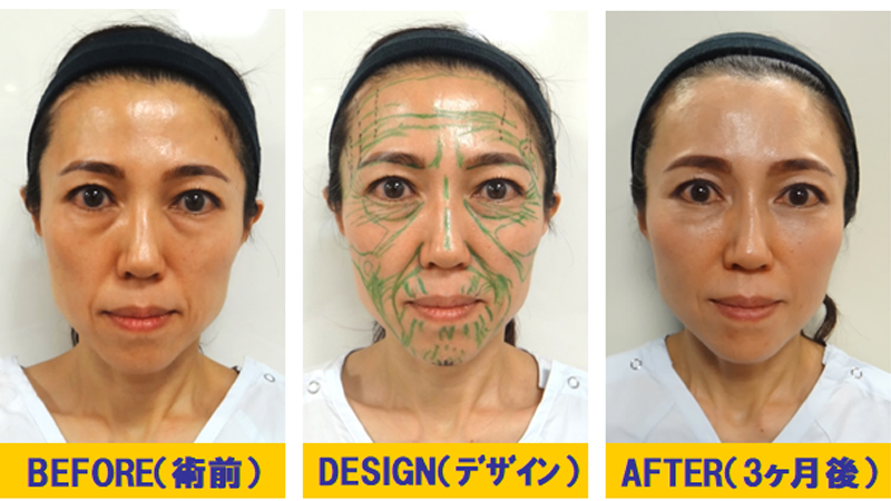 痩せこけ顔への若返り術01-1