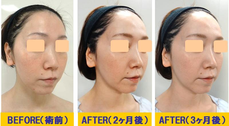 肌改善若返り術03-2