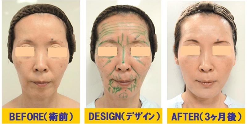 痩せこけ顔への若返り術03-1
