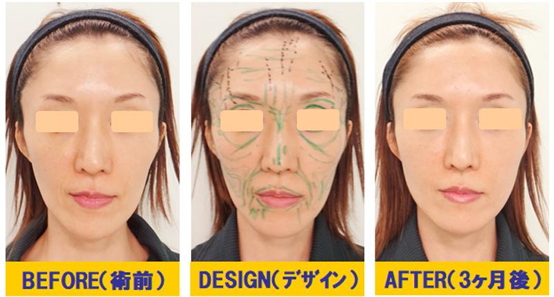 痩せこけ顔への若返り術02-1
