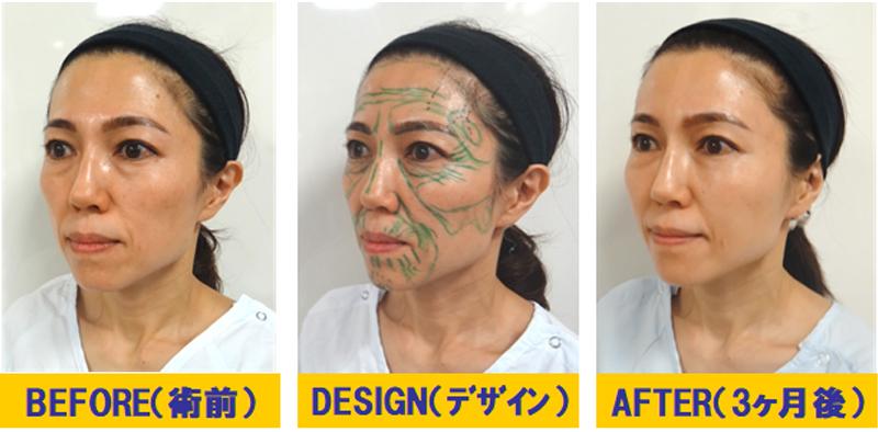 痩せこけ顔への若返り術01-2