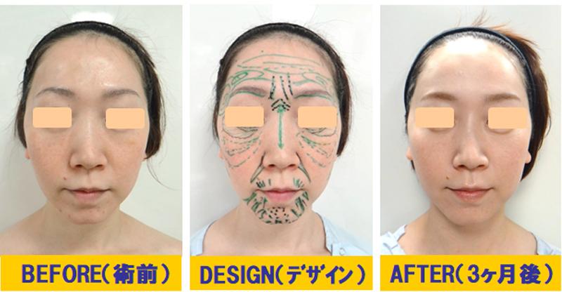 肌改善若返り術03-1.jpg