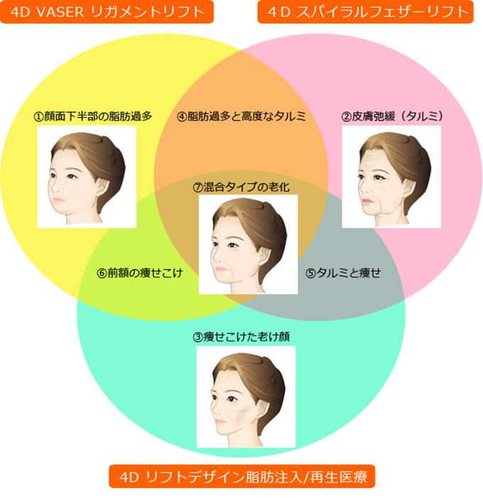 顔のタルミ施術適応別お顔タイプ