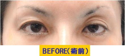 クボミと加齢要素が加わった左右差のある眼瞼下垂の例