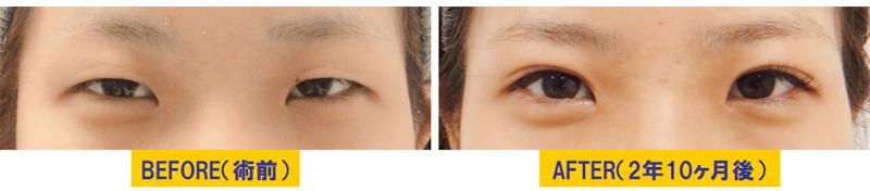 細目タイプ若年性眼瞼下垂02