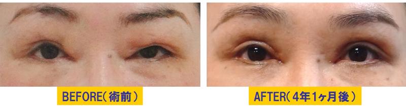他院術後の後遺症による眼瞼下垂01