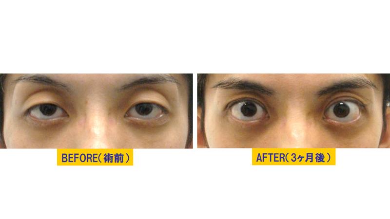 くぼみと加齢が原因の眼瞼下垂アイキャッチ
