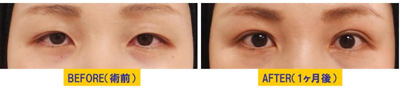 軽度若年性眼瞼下垂03