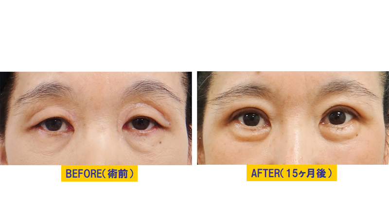 眼窩脂肪が分厚い眼瞼下垂