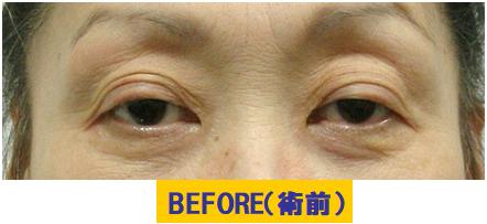 蒙古ヒダのツッパリと加齢要素が加わった眼瞼下垂の例