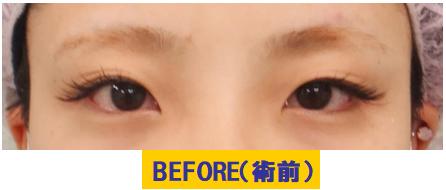細目タイプ若年性眼瞼下垂