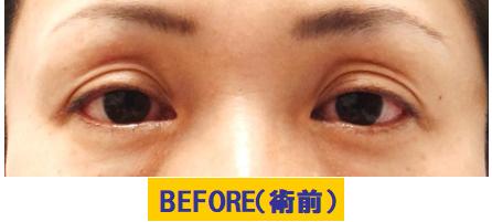 窪みとたるみと加齢要素が加わった眼瞼下垂