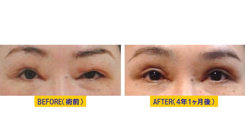 他院術後に発症した眼瞼下垂アイキャッチ