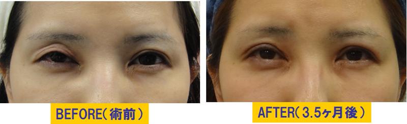 他院術後の後遺症による眼瞼下垂03