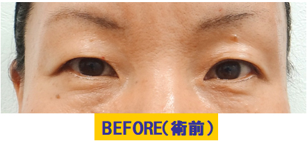 皮膚の厚みとタルミ、眼窩脂肪の厚みと加齢要素が加わった眼瞼下垂の例