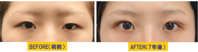 若い方の眼瞼下垂03