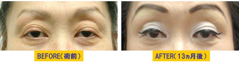 加齢による蒙古襞が目立つ眼瞼下垂02