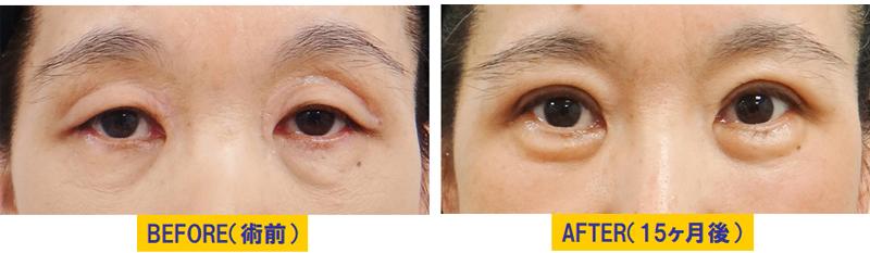 眼窩脂肪が分厚い眼瞼下垂01
