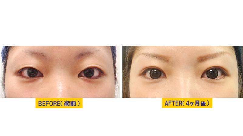 瞼が腫れぼったい眼瞼下垂アイキャッチ