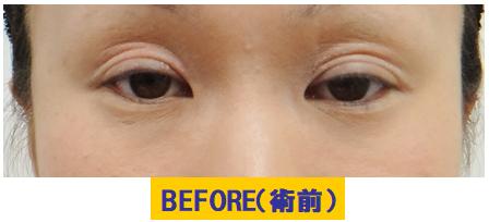 後天性疾患・外傷後の眼瞼下垂.jpg