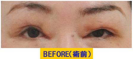 他院挙筋短縮・前転法後や埋没法術後の医源的眼瞼下垂
