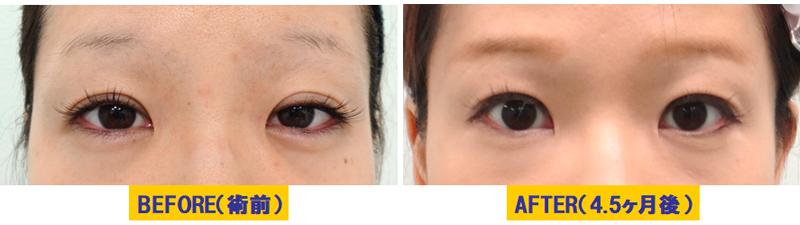 加齢による蒙古襞が目立つ眼瞼下垂01