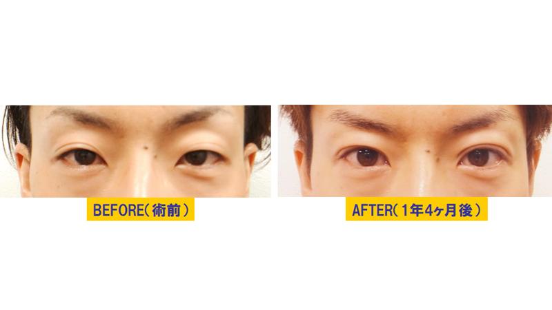 瞼のくぼみを伴う眼瞼下垂アイキャッチ