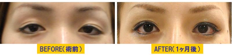 瞼のくぼみを伴う眼瞼下垂02