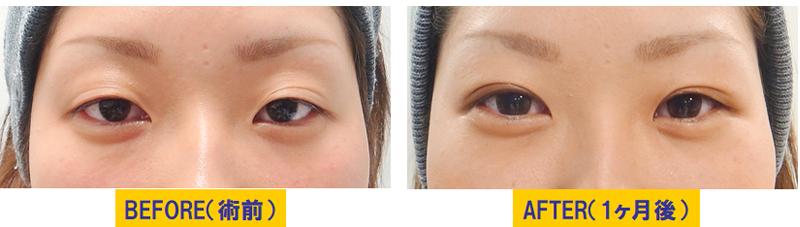 軽度若年性眼瞼下垂02