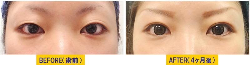 腫れぼったい瞼の眼瞼下垂01