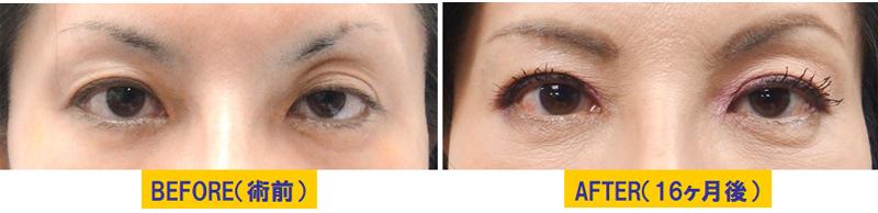 瞼の窪み&左右差がある眼瞼下垂01
