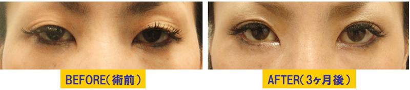 瞼のくぼみと加齢による眼瞼下垂3