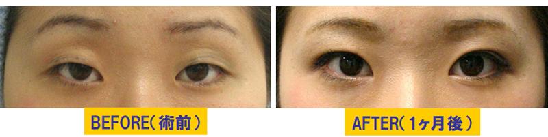 瞼のくぼみを伴う眼瞼下垂03