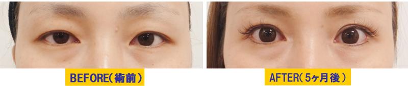 腫れぼったい瞼の眼瞼下垂02.jpg