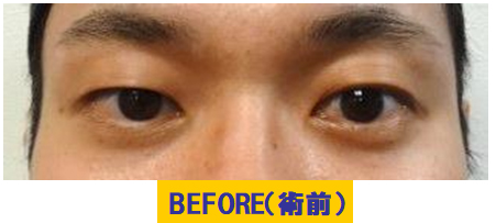 軽度若年性眼瞼下垂