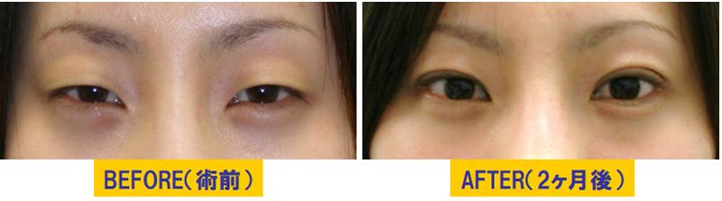細目タイプ若年性眼瞼下垂03