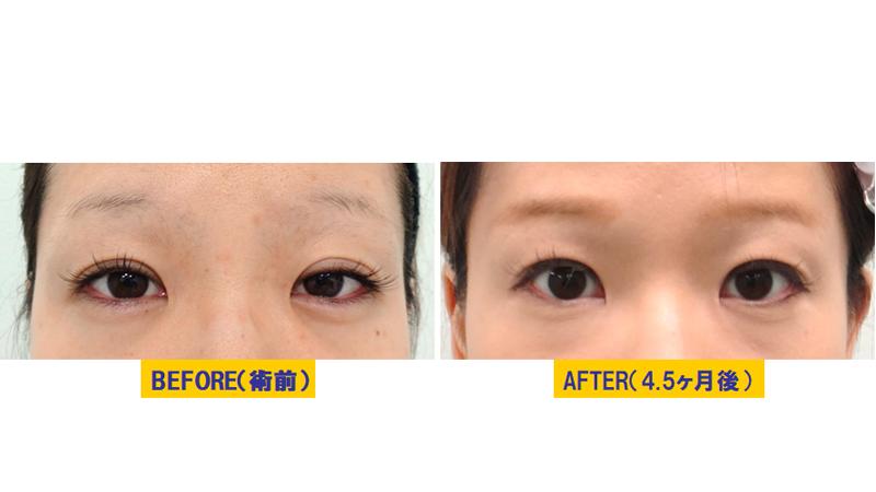 加齢による蒙古襞が目立つ眼瞼下垂