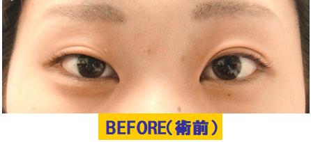 左右差のある若年性眼瞼下垂