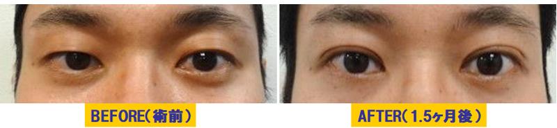 軽度若年性眼瞼下垂01.jpg