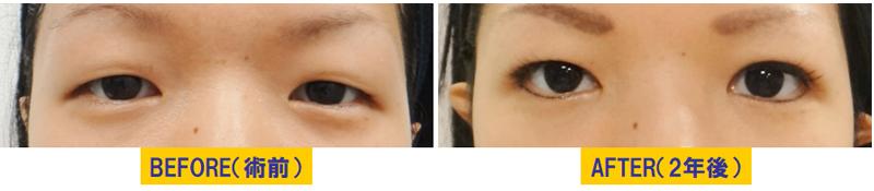 若い方の眼瞼下垂02