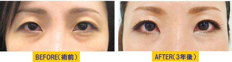 加齢による蒙古襞が目立つ眼瞼下垂03