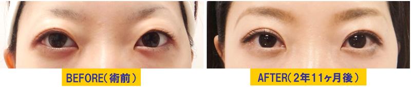 他院術後の後遺症による眼瞼下垂02.jpg