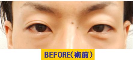 クボミを伴う若年性眼瞼下垂