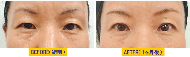 眼窩脂肪が分厚い眼瞼下垂02