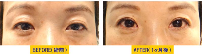 瞼のくぼみと加齢による眼瞼下垂2